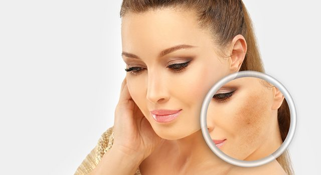 How to Prevent and Treat Acne Scars